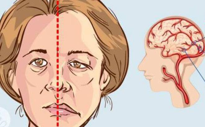 Phương pháp massage bấm huyệt trị méo miệng